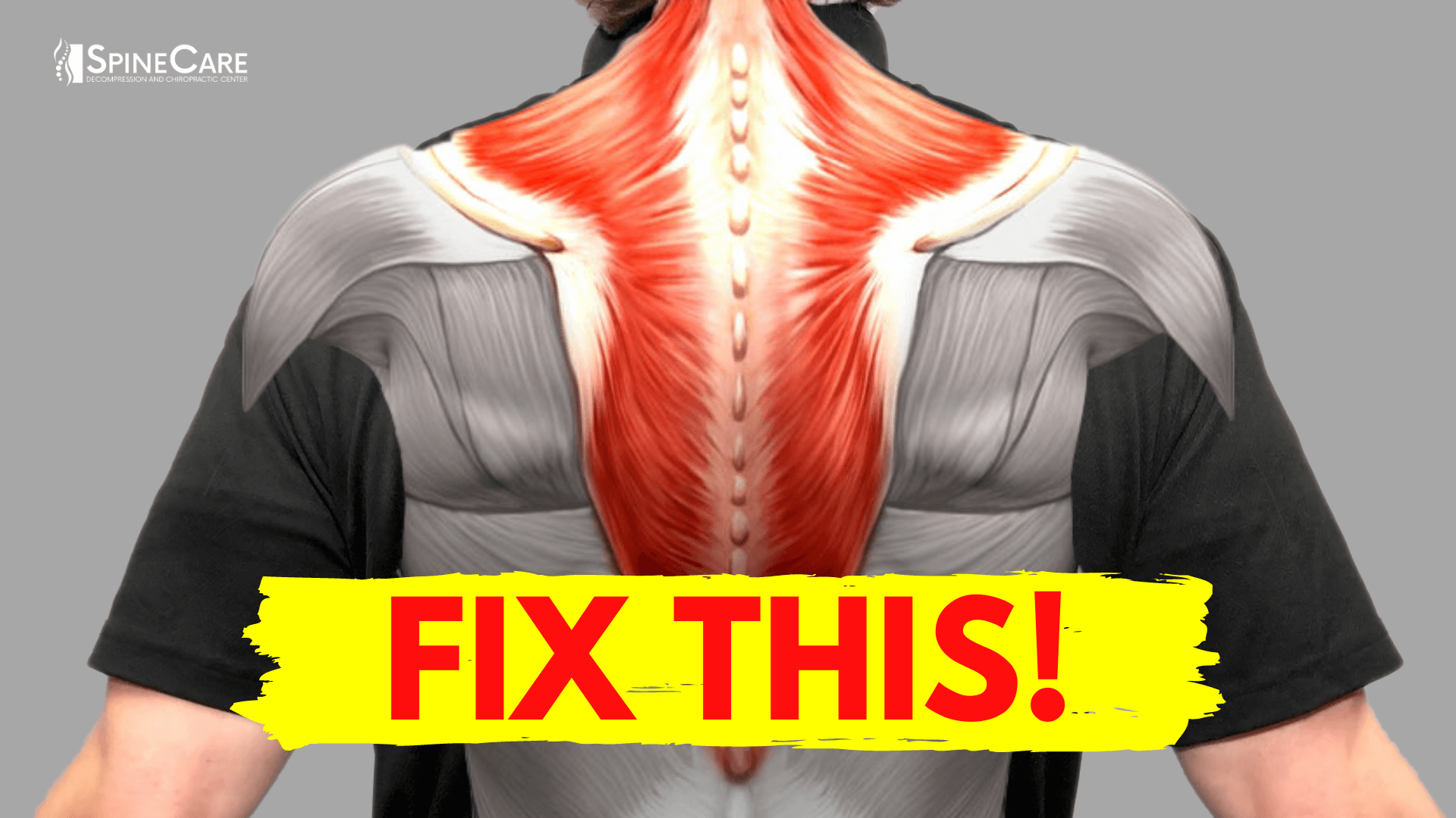 How to Fix Muscle Knots in Your Neck and Shoulder in 30 SECONDS | SpineCare | St. Joseph, Michigan Chiropractor