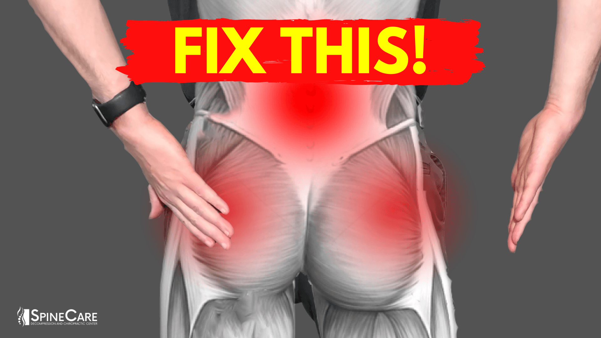How to Fix Muscle Knots in Your Lower Back and Hips | SpineCare | St. Joseph, Michigan Chiropractor