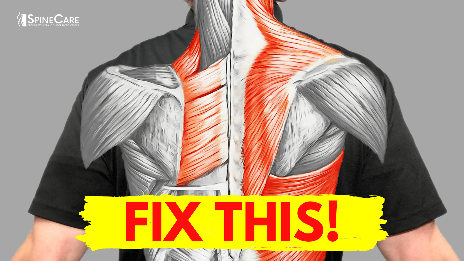 How to Fix Muscle Pain Between Your Shoulder Blades for Good | SpineCare | St. Joseph, Michigan Chiropractor